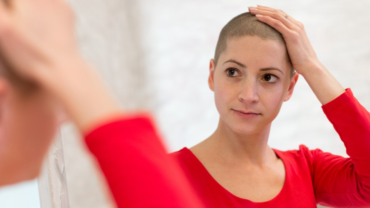 Betere Teruggroei Van Haar Na Chemo Of Chemotherapie