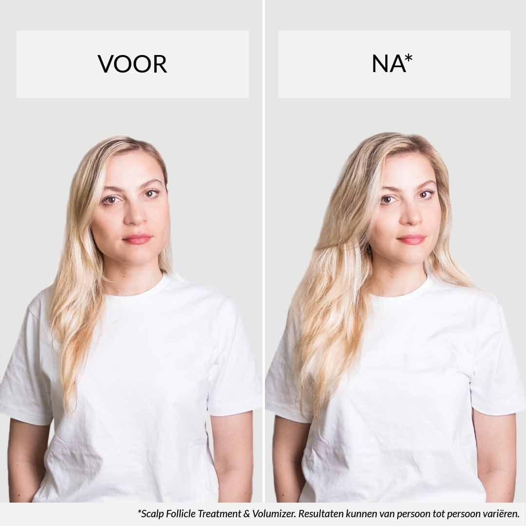 Fijn Haar Deze Producten Heb Je Nodig Voor Fijn En Dun Haar 2021 Hairlust Nederland