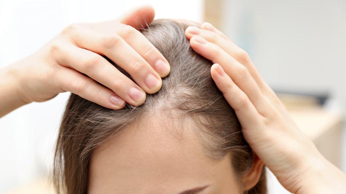 Pleksgewijze Kaalheid En Haarverlies Alopecia Areata Of Mannelijke Kaalheid